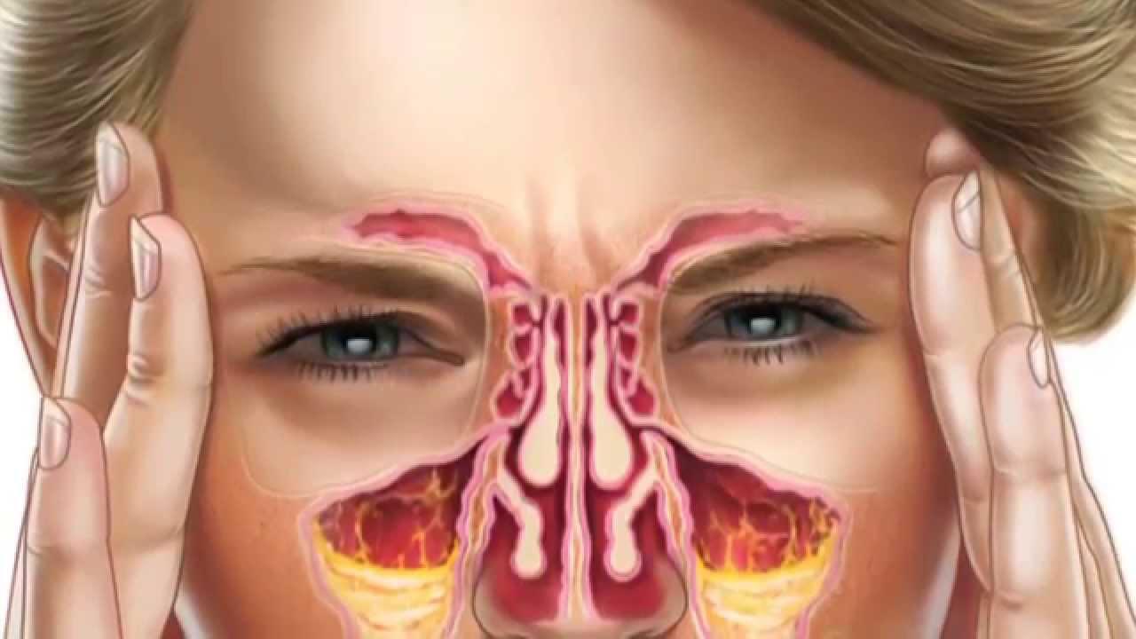 Nasal Sinuses Anatomy | Faculty of Medicine