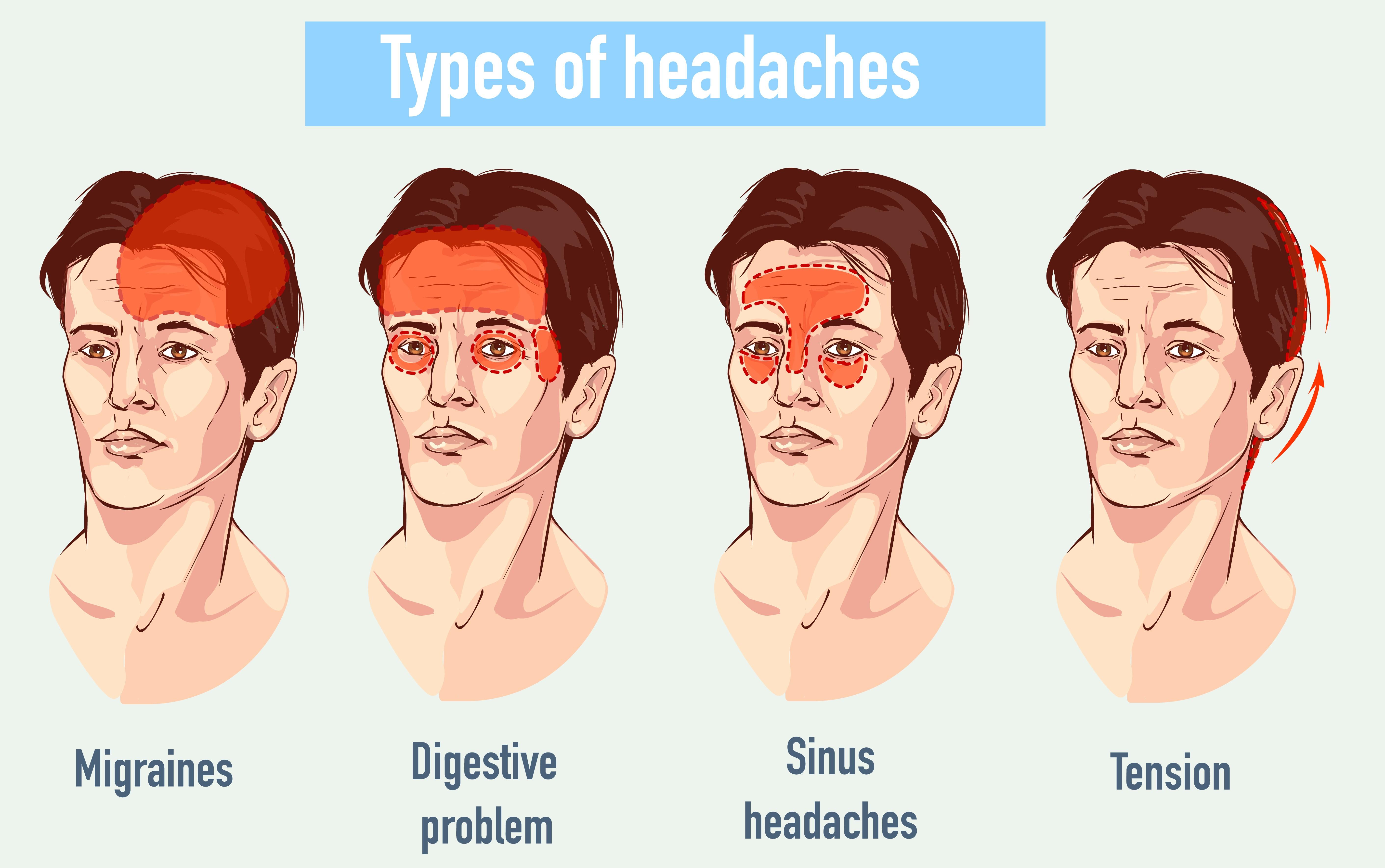 Un dolor de cabeza inocente podría ser fatal Heres Cómo detectar-4280