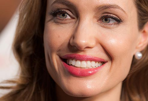 Can you Recognize Celebrities' Perfect Smiles? Guess Who ...