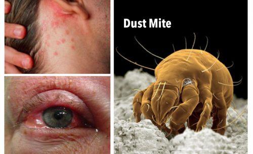 eyebrow mites