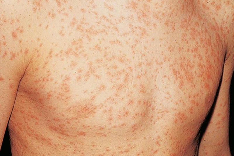 HIV Rash: What Does It Look Like And How Long Does It Last