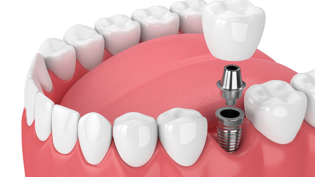 dental-implant-graphic-min.jpg