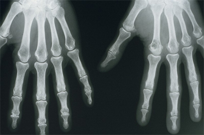spot diagnosis 2.jpg