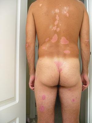 Spot Diagnosis.jpg