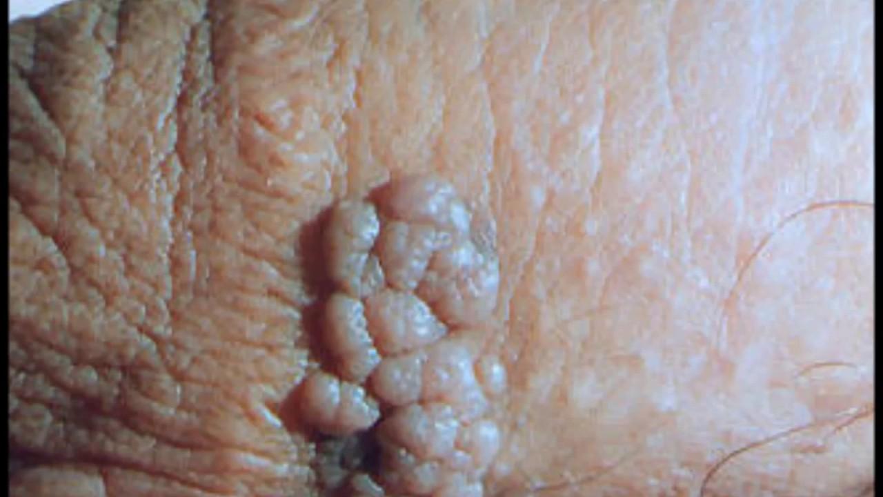 Hacer las verrugas genitales desaparecen por sí solos Facultad de Medicina-5209