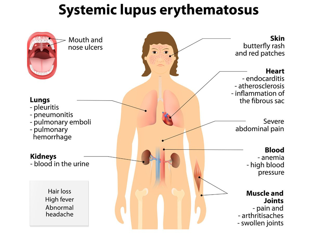New Guidelines Published To Improve Diagnosis And Treatment Of Lupus Faculty Of Medicine