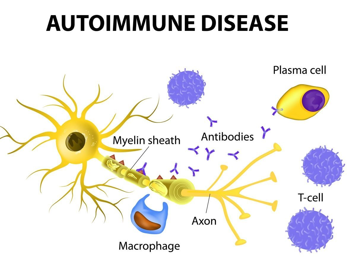autoimmune disease In many of the disorders in which autoimmunity has been incriminated, or at least  accused, as a leading etiologic factor, familial aggregation is observed.