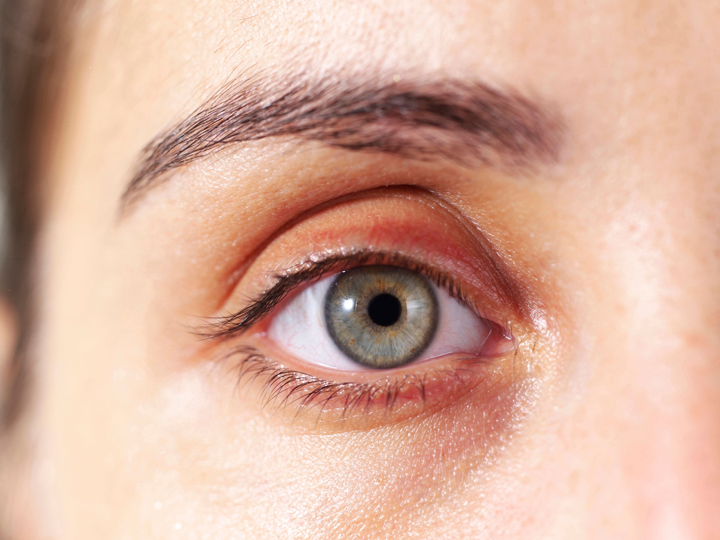 Как убрать жировик с глаза в домашних условиях
