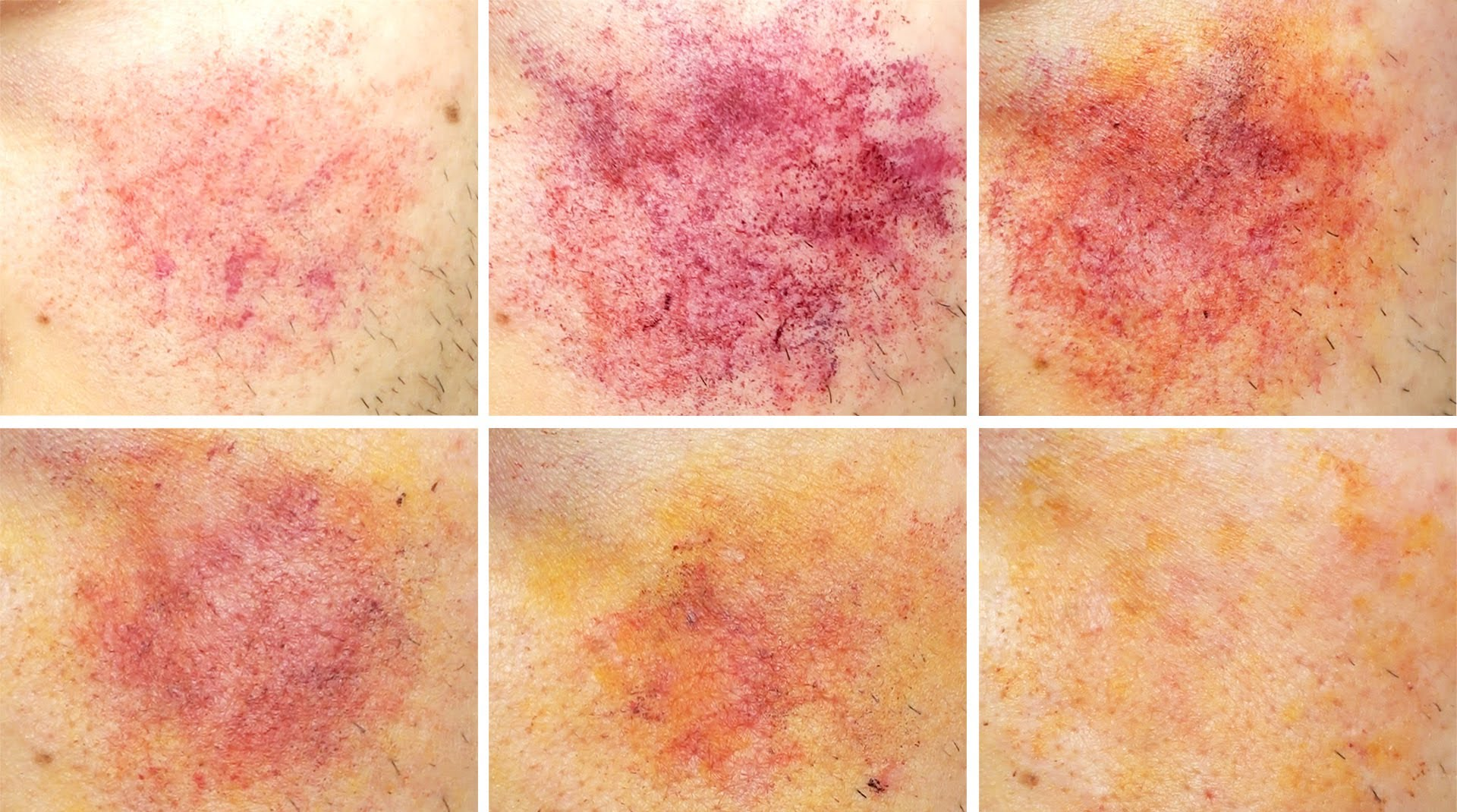 what are the different types of bruises