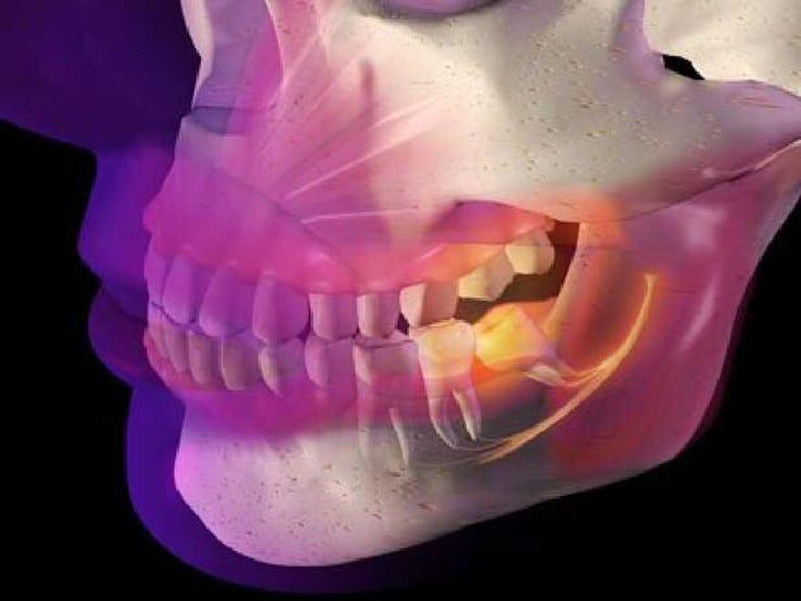 molar tooth abscess - 700×450