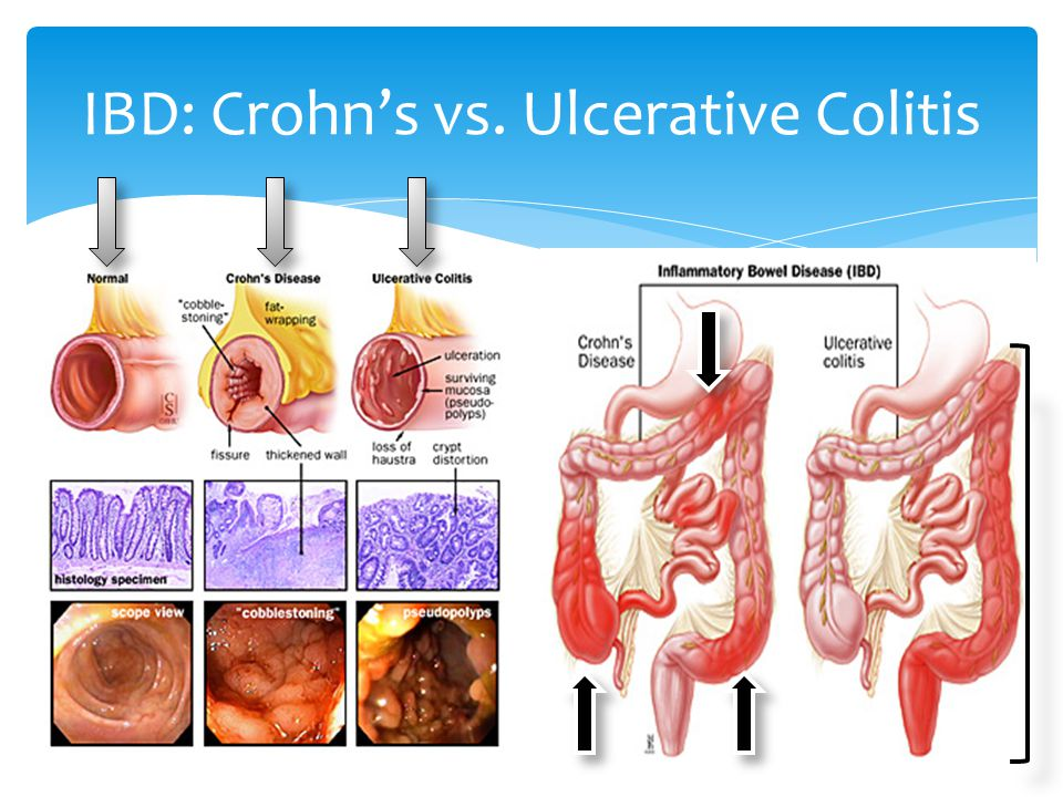 a research on chrons disease a form of inlfammatory bowel disease