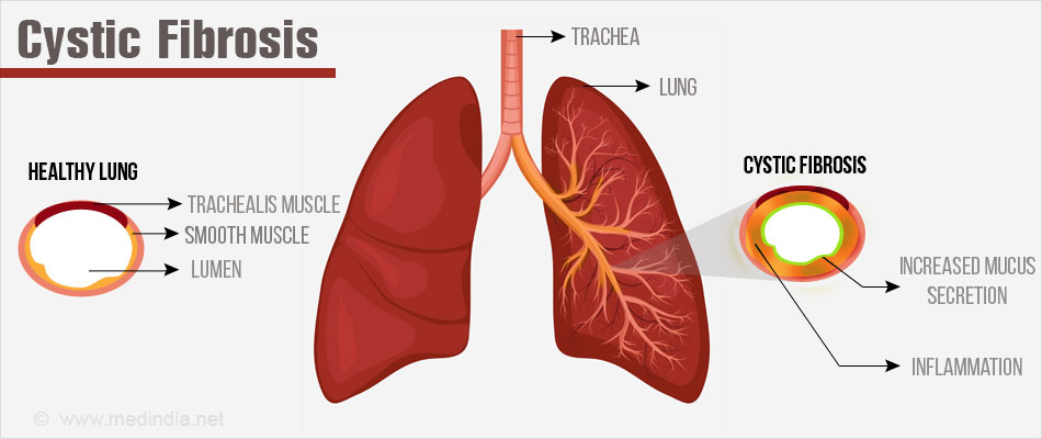 an analysis of the cystic fibrosis disease in medical research Cystic fibrosis cystic fibrosis (cf) is an incurable genetic disorder that mainly affects the lungs and digestive system, and is the uk's most common life threatening inherited disease.