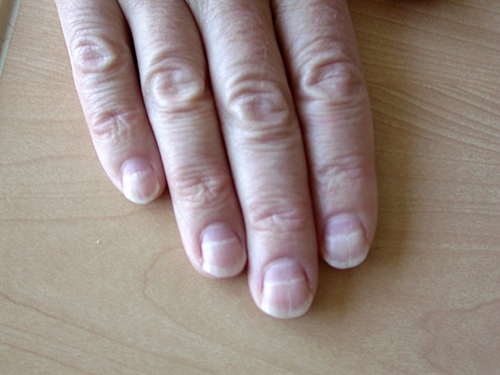 Zinc Deficiency And Fingernails 27