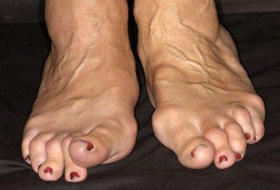 Остеохондроз лечение и гимнастика